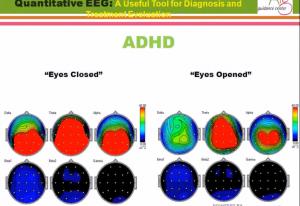 نقشه رنگی مغز QEEG
